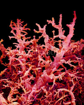 asight:  blood vessels in lungs. they look like coral.