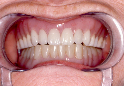 Dentures that look natural teeth