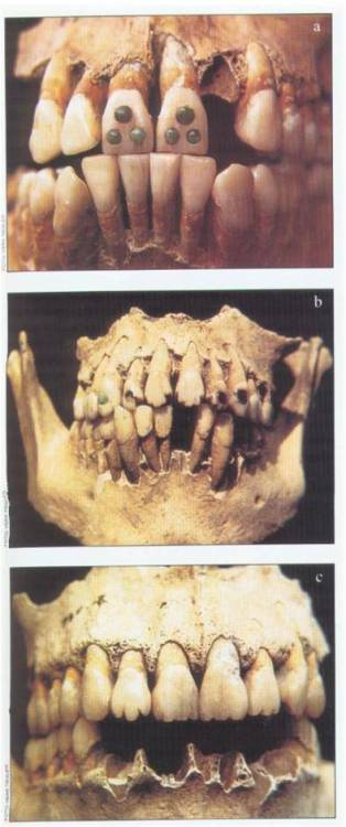 bigbigbigthings:  mayan dental modification!!!