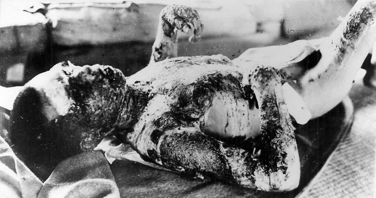 """""""A badly burned nuclear bomb victim lies in quarantine on the island of Ninoshima in Hiroshima, Japan, 9,000 meters from the hypocenter on August 7, 1945, one day after the bombing by the United States."""" (AP)"""