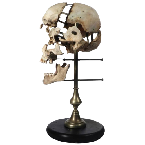 Real Beauchene Skull (Medical school teaching display) A Beauchene Skull, also known as an exploded skull, is a disarticulated human skull that has been painstakingly reassembled on a stand with jointed, movable supports. This device allows viewers to move and study individual parts of the skull. found by Roman & Williams on 1stdibs