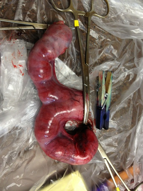 My very first pyometra case! This was in a 3-year-old unspayed cat.  She weighed under six pounds and her pus-filled uterus weighed 140 grams, or 0.3 lbs.  The clothespin in this photo is for scale.  Pyometra, an infection of the uterus, occurs in cats and dogs when their ovaries produce hormones at an inappropriate time in their cycle. This causes the cervix to open when it shouldn't. Bacteria from the outside, such as E. coli from the nearby anus, may travel into the vagina and then into the uterus. The uterus has little in the way of natural defense, and will fill up with inflammatory cells and bacteria. This is usually fatal if untreated, as the uterus can close up and create a ticking time bomb - if it ruptures, it's septic peritonitis and game over. Cats are usually less systemically ill than dogs, but both can die. Medical treatment with hormones and antibiotics can be attempted in valuable breeding animals, but immediate spay surgery is the best option.   Of course, when you're cutting the uterus out you do have to take care not to explode that whole thing, which feels like a turgid, angry sausage… It was rather nerve-wracking!  Especially the initial incision into the abdomen, which was a WHOOP THERE IT IS moment.   So please, if you know you aren't  breeding your female pets, spay them!
