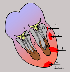 medicineisnotmerchandise:  Different sites of myocardial infarct 1 = subendocardial infarction, 2 = intramural infarction, 3 = transmural infarction, 4 = subepicardial infarction. (MV = mitral valve, TV = tricuspid valve, LV = left ventricle, RV = right ventricle, S = septum, P = papillary muscle.) (via Heart Attack Education)