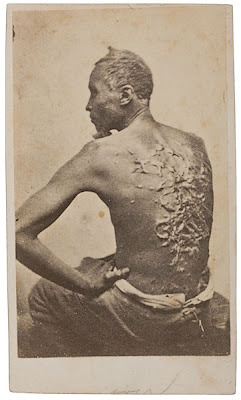 The photograph pictures the runaway slave Gordon exposing his scourged back to the camera of two itinerant photographers, William D. McPherson and his partner, Mr. Oliver. Gordon, had received a severe whipping for undisclosed reasons in the fall of 1862. This beating left him with horrible welts on much of the surface of his back. While the plantation owner discharged the overseer who had carried out this vicious attack, for the next two months as Gordon recuperated in bed, he decided to escape.  In March 1863 he fled his home, heading east towards the Mississippi River. Upon learning of his flight, his master recruited several neighbors and together they chased after him with a pack of bloodhounds. Gordon had anticipated that he would be pursued and carried with him onions from the plantation, which he rubbed on his body to throw the dogs off-scent. Such resourcefulness worked, and Gordon—his clothes torn and his body covered with mud and dirt—reached the safety of Union soldiers stationed at Baton Rouge ten days later. He had traveled approximately eighty miles.  While at this encampment Gordon decided to enlist in the Union Army. As President Lincoln had granted African Americans the opportunity to serve in segregated units only months earlier. It was during his medical examination prior to being mustered into the army that military doctors discovered the extensive scars on his back. McPherson and Oliver were then in the camp, and Gordon was asked to pose for a picture that would reveal the harsh treatment he had recently received.