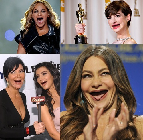 the-girl-who-laughed:  limey404:  angelcasimiro:  Celebrities without teeth.  SCREAms  I'M CRYIGN  Anne still looks so adorable tho