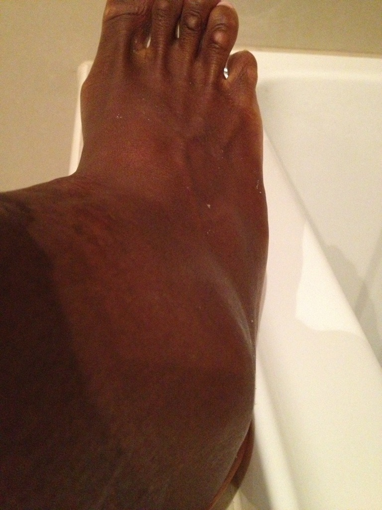 OH GOD: Serena Williams tweeted a photo of her ankle after her Australian Open quarter-final loss to Sloane Stephens. She was not messing around. (Via Twitter)