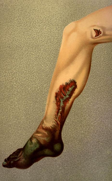 biomedicalephemera:  Gangrene following a gunshot laceration of the femoral artery Dry gangrene is caused by acute or chronic loss of blood flow to the distal part of a limb, and is most often seen these days in those with poorly-controlled diabetes and in life-long smokers. However, it can also occur if the limb suddenly loses circulation, such as in a thrombosis (blood clot), or a lacerated artery, as is seen here. Without no circulation, tissues begin to die immediately, and spreads outwards until the point where bloodflow is adequate to keep tissue alive (in this case, probably around the point of laceration). Assuming no bacterial infection took hold above the gangrenous area, and the healthy tissue sealed itself off successfully, the end result without surgery would be the drying up and falling off of the necrotic tissue, in a process known as autoamputation.  However, the number of confounding factors in possible autoamputation scenarios is vast, and surgical intervention is called for whenever possible. An American Text-Book of Surgery. Edited by J. William White and William W. Keen, 1894.