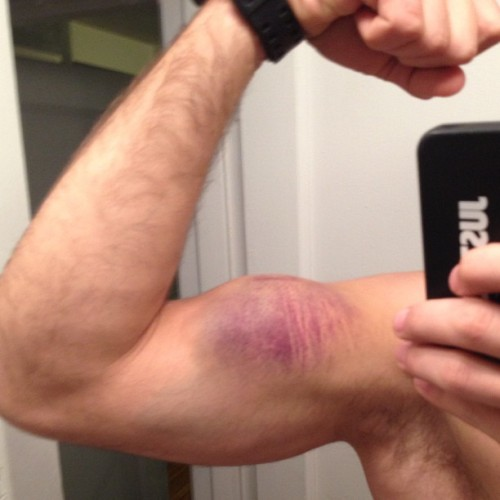 Be careful during muscle ups!
