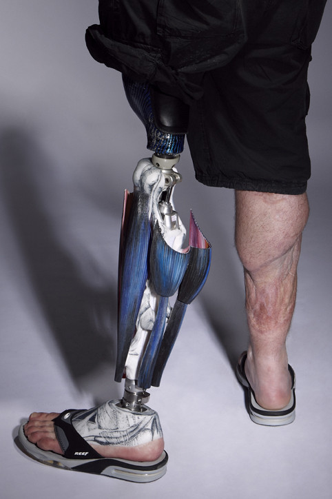 tbch:  Alternative Limb Project