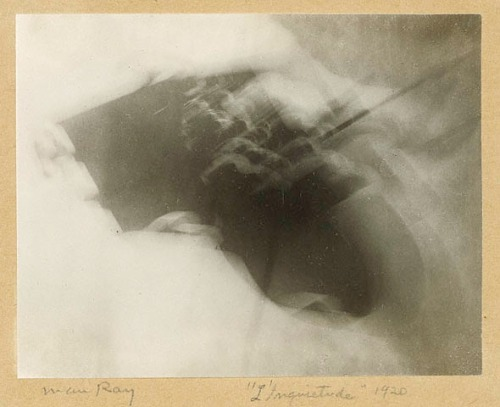 Man Ray - Anxiety, 1920.