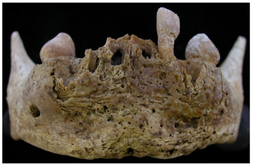 openaccessarchaeology:  New Open Access Issue of Dental Anthropology Journal http://anthropology.osu.edu/DAA/dentalanthropologyjournal.htm