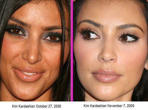 the-absolute-funniest-posts:  Check out Before and After cosmetic surgery pics right here! We think it works WONDERS!