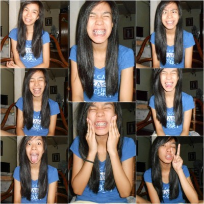 HELLO BRACES! :) WELCOME BACK :D