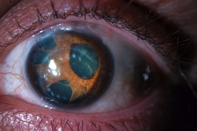 disclosur:  Eye with polycoria (multiple pupils)  Polycoria, much like many other diseases, results from either a congenital or acquired cause. If it is congenital, usually the genetic defect results in either absence or failure of the optic nerve. Therefore, the patient is blind in that eye from birth. When it is acquired (e.g. after trauma) the brain is developed in its visual cortex. This means that the infiltrating iris will just darken the spots seen by the brain. These are called scotomas. So although these are technically multiple pupils, they really are just reactive tissue causing interference of your visual field.