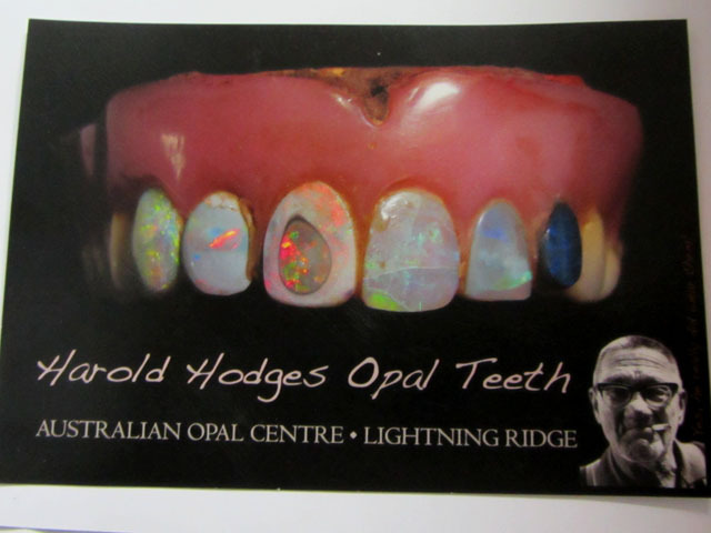 Opal teeth says it all! n u thought todays nose rings were cool!