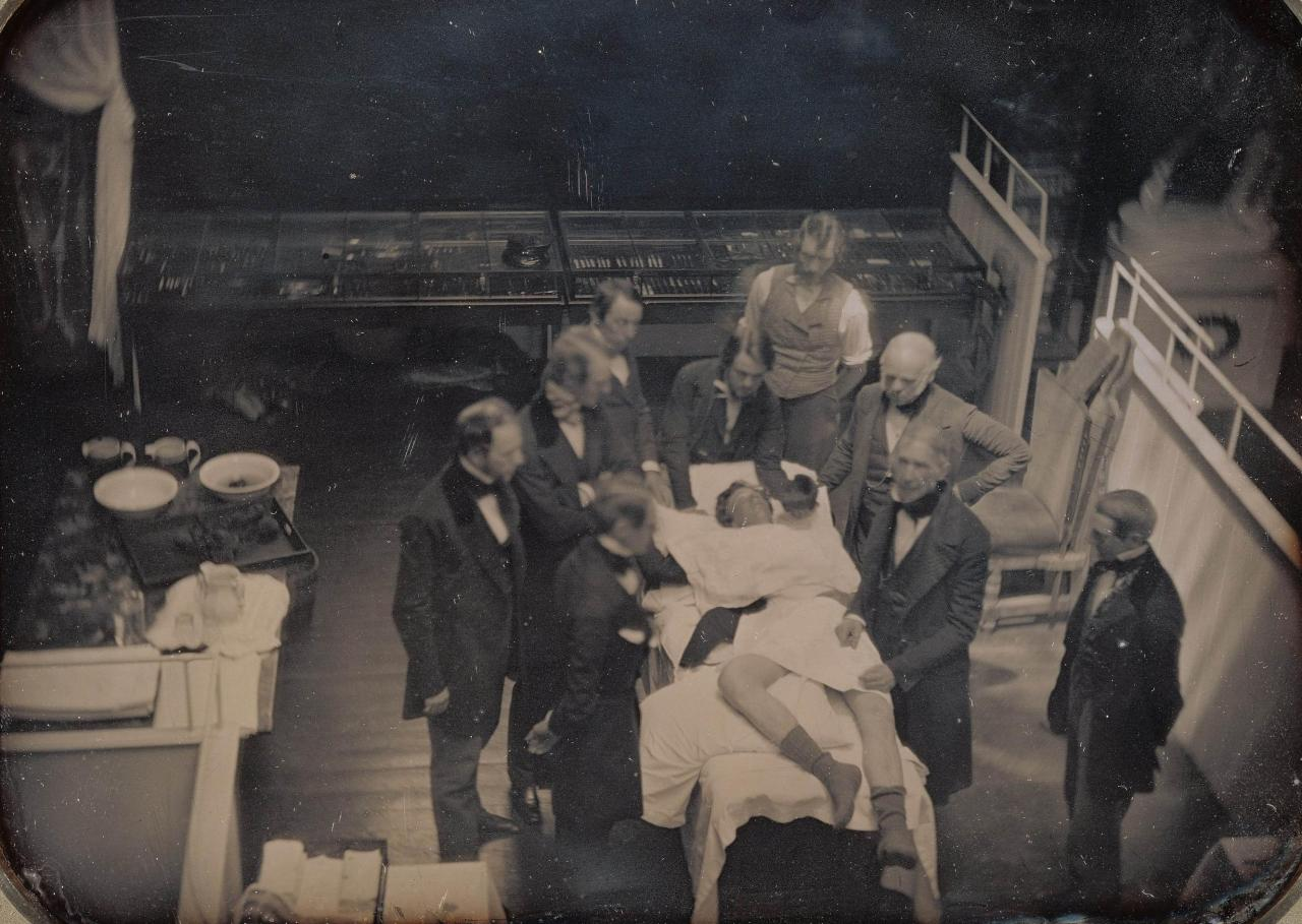 The first photographic record of an actual live medical operation: Use of Ether for Anesthesia, 1847  The setting for this daguerreotype is the teaching amphitheater of Boston's Massachusetts General Hospital. Dr. John Collins Warren, cofounder of the hospital and professor of anatomy, stands with his hands upon the patient's thigh, explaining the proceedings to a student audience seated out of camera range. Dr. Solomon Davis Townsend, who performed the operation, stands behind Warren with his left arm akimbo. An unidentified anesthetist holds a sponge soaked in ether near the head of the patient who, curiously enough, still wears his socks.  Source: The J. Paul Getty Museum