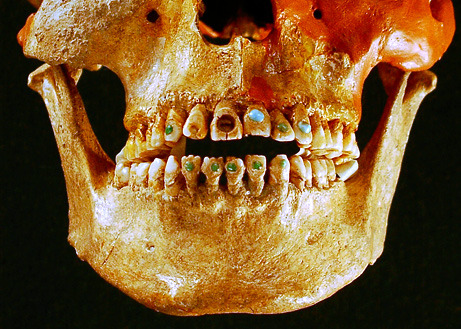 "pre-Columbian Mesoamerican Bling. These people willingly had ""dentists"" drill their teeth to put these jewels in for purely aesthetic reasons. I don't even trust modern dentists. http://news.nationalgeographic.com/news/2009/05/090518-jeweled-teeth-picture.html"