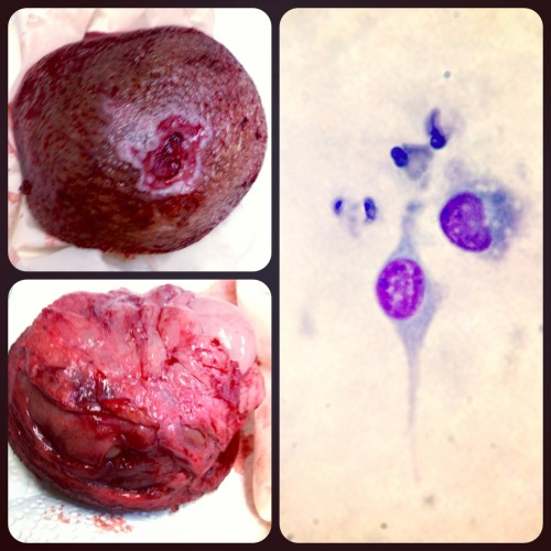A possible spindle cell sarcoma removed from the leg of a dog.  The mass was ulcerated and bleeding, which necessitated rapid removal.  The owners declined to send it to the lab for histopathology and definitive diagnosis, but when an in-house cytology was checked, suspicious spindle-shaped cells were seen.  Spindle cell sarcomas are typically locally aggressive, malignant cancers that can infiltrate deep into surrounding tissue on a microscopic level.  Their removal is often incomplete due to this aggressive behavior.  They tend to recur once removed unless radiation therapy is performed on the site.