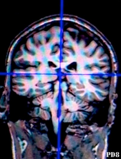 "Neuroimages in court: not as bad as we thought So what I usually get from the lawyers I corner speak with about using brain scans as evidence, it's mostly hell to the no, because A) we'd need an expert B) experts are expensive C) client is broke. Another response is jurors won't get it and it will just complicate things. The consensus is jurors can't handle a brief fMRI lecture to understand it's meaning and limitations so they'll just figure it's all hard science, self evident to the argument being made and treat it like photographic proof.  dun dun. Until recently, a couple of really big studies supported this notion and everyone at the cool table got on board. Brain porn in the court became a thing and whispering sexy hard-sciencey neurobabble in your ear is what it did seducing you with its pretty colored blobs. Then it kinda fell into a place like tween technology can, where we can't trust it running the streets alone without a decent explanation, some background and a curfew. But new research contradicts this concept ""prompting a rethinking of the 'threat' of neuroscience in the courtroom"". dun dun. (ok I'll stop.) The deal is the initial studies didn't look at the effect of using the images with mock jurors in. a. full. mock. trial. Srsly, methodologies? Anyway, this article (+1 for the multidisciplinary collabo) gives a detailed overview of 3 new studies that are show findings contradictory to the neurolaw safety dance that's so trendy. No reason for that link except, it's the only chance it will ever have. …k, moving on. I'm all for being cautious, but we are tip toeing, slow poking and dumbing down when what we need is just a little explanation, insight and mostly more experiments designed to replicate a real world trial experience. Showing images and peppering it with a scientific summary is like convicting by confession alone without seeing the interrogation. It turns out:  …in experiments with crimes ranging from homicide to unintentional assault, the authors found no evidence that neuroimages influenced jurors' decisions about criminal liability or sentences. Convictions and punishments were, however, related to the level of perceived control by the defendant, and this was affected by the presence and kind of expert testimony – but not by neuroimages. -Gurley and Marcus  The next study danced a similar jig when looking at the use of neuroimages in an insanity defense, ""Gurley and Marcus did not dissociate the effects of the neuroimage from those of the neurological expert testimony. Schweitzer and Saks did, and found no impact of neuroimages over and above the effects of verbal neuroscience testimony."" Further work can go beyond culpability and look at sentencing as well.   Three recent studies (the 3rd unpublished) have all suggested testimony weighed heavier in juror decision making (exculpatory fashions) than brain scans … and may have me thinking I'll reopen my expert witness biz. Giddyup."