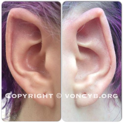 hellamodified:  withinatangledskein:  Ear points after 5 weeks of healing :] Done by Samppa Von Cyborg! You should defiantly go check out more of his amazing work at http://www.facebook.com/voncyborg  Healed nicely