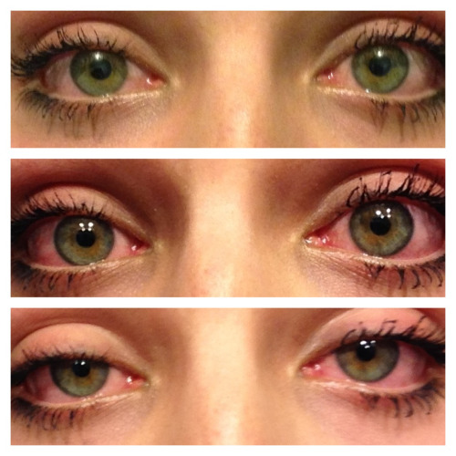 "lindsaychrist:  tokesnjokes:  habsolutely-:  i smoke two joints before i smoke two joints, and then i smoke two more.  look at the iris development, its stunning   ""iris development"""