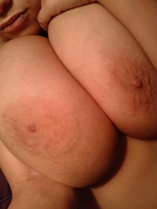 brazilian breast lift using implants                           free dating site in canada and usa  slipknot live 2002  slip brazilian 360