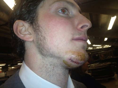 "-mars:  Matt Duchene. Puck off the face. Didn't miss a shift. Stitches can wait till after the game. ""I'm Cool, Bro."" 13 seconds after skating to the bench, he's back in the next shift and takes the face off."