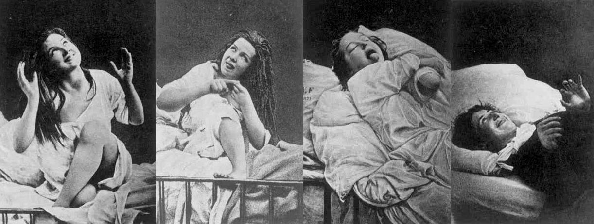 "Hysteria under Hypnosis A series of photographs from the 1870s of a woman apparently ""suffering"" from female hysteria, that is, ""a tendency to cause trouble,"" whilst under hypnosis."