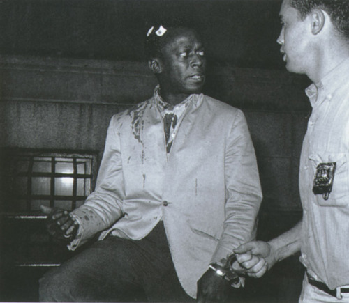 vicious-haiku:  Jazz legend Miles Davis bleeding after being beaten up by police during a show
