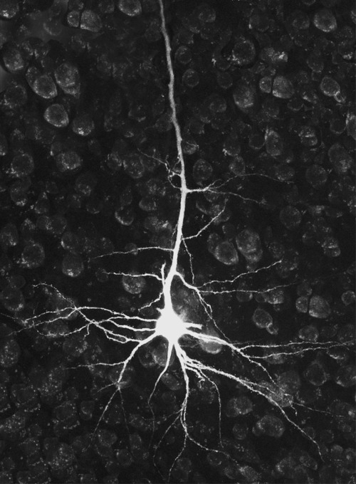 "Researchers turn one form of neuron into another in the brain A new finding by Harvard stem cell biologists turns one of the basics of neurobiology on its head – demonstrating that it is possible to turn one type of already differentiated neuron into another within the brain. The discovery by Paola Arlotta and Caroline Rouaux ""tells you that maybe the brain is not as immutable as we always thought, because at least during an early window of time one can reprogram the identity of one neuronal class into another,"" said Arlotta, an Associate Professor in Harvard's Department of Stem Cell and Regenerative Biology (SCRB). The principle of direct lineage reprogramming of differentiated cells within the body was first proven by SCRB co-chair and Harvard Stem Cell Institute (HSCI) co-director Doug Melton and colleagues five years ago, when they reprogrammed exocrine pancreatic cells directly into insulin producing beta cells. Arlotta and Rouaux now have proven that neurons too can change their mind. The work is being published on-line by the journal Nature Cell Biology. In their experiments, Arlotta targeted callosal projection neurons, which connect the two hemispheres of the brain, and turned them into neurons similar to corticospinal motor neurons, one of two populations of neurons destroyed in Amyotrophic Lateral Sclerosis (ALS), also known as Lou Gehrig's disease. To achieve such reprogramming of neuronal identity, the researchers used a transcription factor called Fezf2, which long as been known for playing a central role in the development of corticospinal neurons in the embryo. What makes the finding even more significant is that the work was done in the brains of living mice, rather than in collections of cells in laboratory dishes. The mice were young, so researchers still do not know if neuronal reprogramming will be possible in older laboratory animals – and humans. If it is possible, this has enormous implications for the treatment of neurodegenerative diseases. ""Neurodegenerative diseases typically effect a specific population of neurons, leaving many others untouched. For example, in ALS it is corticospinal motor neurons in the brain and motor neurons in the spinal cord, among the many neurons of the nervous system, that selectively die,"" Arlotta said. ""What if one could take neurons that are spared in a given disease and turn them directly into the neurons that die off? In ALS, if you could generate even a small percentage of corticospinal motor neurons, it would likely be sufficient to recover basic functioning,"" she said. The experiments that led to the new finding began five years ago, when ""we wondered: in nature you never seen a neuron change identity; are we just not seeing it, or is this the reality? Can we take one type of neuron and turn it into another?"" Arlotta and Rouaux asked themselves. Over the course of the five years, the researchers analyzed ""thousands and thousands of neurons, looking for many molecular markers as well as new connectivity that would indicate that reprogramming was occurring,"" Arlotta said. ""We could have had this two years ago, but while this was a conceptually very simple set of experiments, it was technically difficult. The work was meant to test important dogmas on the irreversible nature of neurons in vivo. We had to prove, without a shadow of a doubt, that this was happening."" The work in Arlotta's lab is focused on the cerebral cortex, but ""it opens the door to reprogramming in other areas of the central nervous system,"" she said. Arlotta, an HSCI principal faculty member, is now working with colleague Takao Hensch, of Harvard's Department of Molecular and Cellular Biology, to explicate the physiology of the reprogrammed neurons, and learn how they communicate within pre-existing neuronal networks. ""My hope is that this will facilitate work in a new field of neurobiology that explores the boundaries and power of neuronal reprogramming to re-engineer circuits relevant to disease,"" said Paola Arlotta. (Image courtesy Tulane University)"