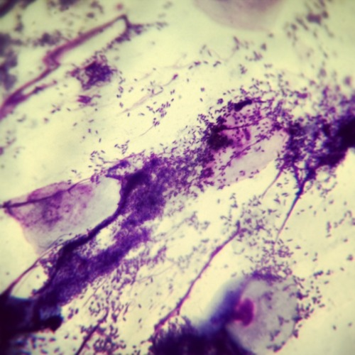 Nasty rod bacteria from a dog's ear. Rod bacteria, like Pseudomonas, are not normal inhabitants of the skin the way that cocci (round) bacteria usually are. When there are rods in an ear, it usually means that it is a secondary infection, where the ear was colonized first with excess yeast or cocci, and then opportunistic rods were able to flourish in the irritated environment. Rod infections are usually treated with strong topical antibiotics such as enrofloxacin (Baytril), but may be very difficult to eradicate.