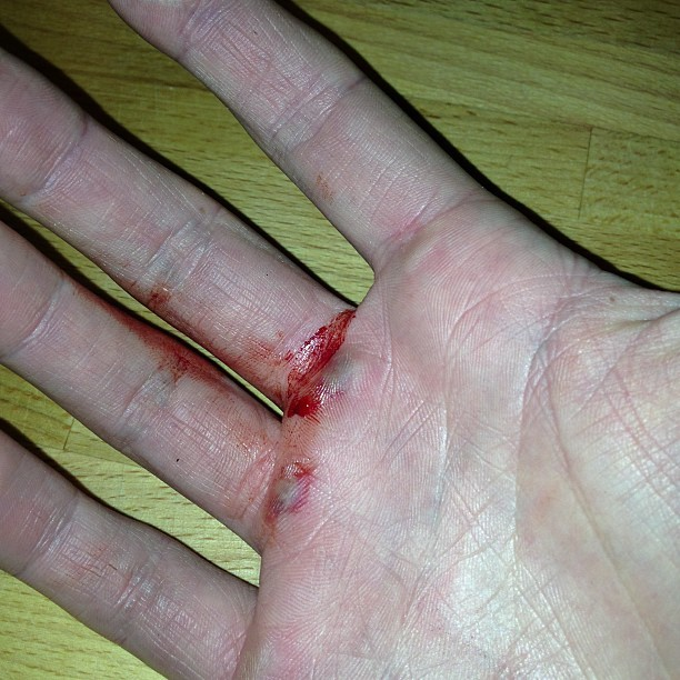 Gym wound #photos #gym #fitness #ymca #workout #exercise #ouch
