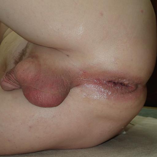 small-limp-sissy: