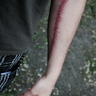 0pen-wounds