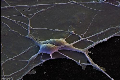 Human Cortical Neurons with interconnecting dendrites, 4,200X by David Scharf.  Cortical Neurons make up the brain's cortex which in part makes up the cerebral cortex, responsible for memory, attention, perceptual awareness, thought, language, and consciousness. (Image Credit: BNPS/RPS/David Scharf)