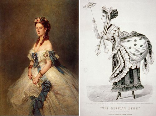 "The Alexandra Limp and Other Affectations of Posture In the 1860s, when Queen Alexandra, then the Princess of Wales, suffered a painful attack of rheumatism in her knee which, in time, resulted in a permanent limp, high society women London, keen as ever to stay on trend with the day's fashion, began to sycophantically imitate it. It became ridiculously popular and was known as the Alexandra Limp, although it was 'widely derided' by, well, by anyone with any sense probably. John Stephen Farmer called it ""an erstwhile fit of semi-imbecility"" by ""a crowd of limping petticoated toadies"". Be that as it may, the fad was followed by a similar curiosity of posture in the USA, namely, The Grecian Bend, which saw women apparently go about their business whilst bent oddly at the waist. Albert Jones Bellows describes in a sighting in Boston:""She waddled a few rods past the store, and then turned round, smiling, or rather smirking, complacently on her 'crowd of admirers,' with an expression of face which seemed to say, … 'All my torture is repaid by the admiration I excite.'"" [Sources: Brewer's Dictionary of Phrase and Fable (p.25) 