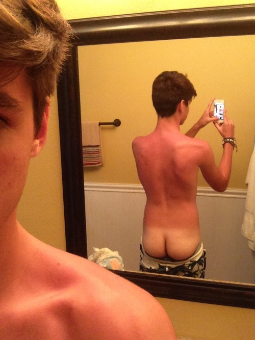 ivyrauhl:  migrated:  deadvibes:  Sunburnt   i dont think your sunburn is the highlight of this photo but nice try   IM LAUGHING SO HARD