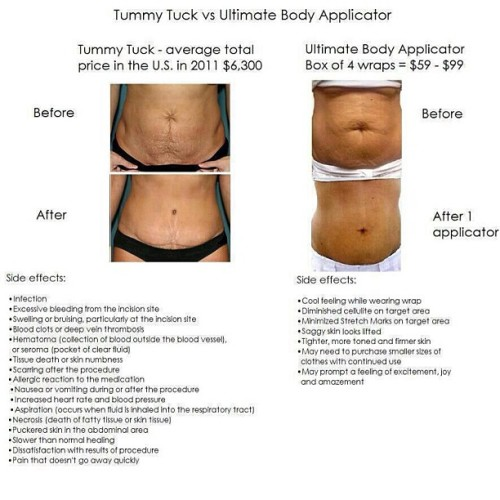 Think about how many people get tummy tucks! Look at the damage! Check out my website or contact me to learn more about the wraps on the right side. :) http://bsobles.myitworks.com •bsobles.itworks@gmail.com