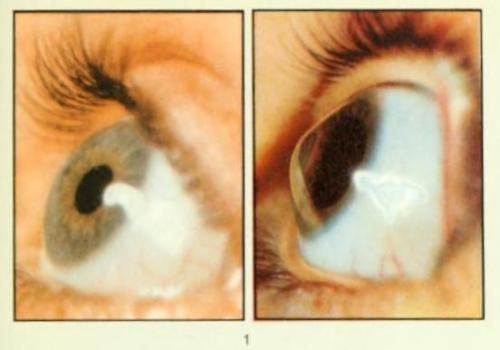"Keratoconus Keratoconus (also known as ""conical cornea"") is a degenerative disease of the eyes that manifests itself as a gradual degradation of the cornea into a more conical form than the typical eyeball.  This condition can cause extreme nighttime vision distortion, sensitivity to light, itching, ""ghost"" images and some distortion of daytime vision. The etiology of this condition is not fully understood, though it's known that proteases break down many of the keratin bonds in Bowman's layer of the cornea, causing a relaxation of the tissues.  In most patients with keratocornea, the degradation will ""settle"" at a degree that can be corrected by glasses. In 25% of patients, however, corneal transplant may be called for, in order to allow nighttime vision and increased sight during the day. Diseases of the Eye: Number One. Moorfields Manchester Institute of Ophthalmology, The Medical Illustration Department, pre-1950."