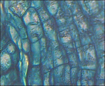 some cells of a random plant with a magnification of 1280x (if you dont have biology) all those bubbles are seperate cells. you can see some stuff in the seperate cells which are tiny circular thingies called chloroplasts, choloroplasts are what makes plants green