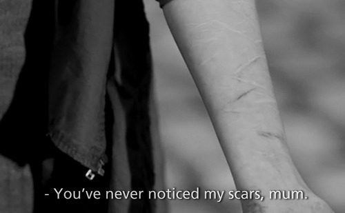 You've never noticed my scars, mom.