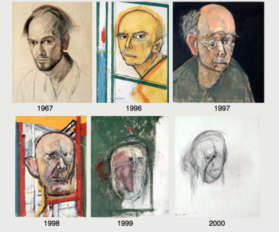 An artist with Alzheimer's drawing self-portraits.