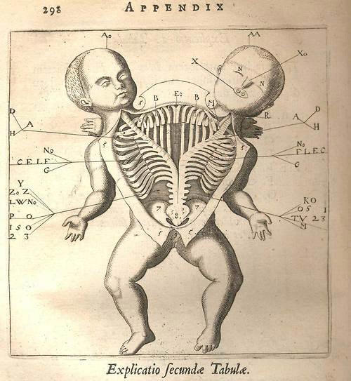 nelovie:  Anatomical drawing of a Siamese twin.  Fortunio Liceti, De monstris, Amsterdam 1665.