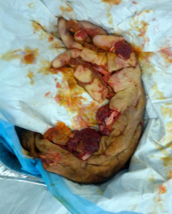 lessons-in-gore:  An amputated hand and arm after a meat-grinder accident.