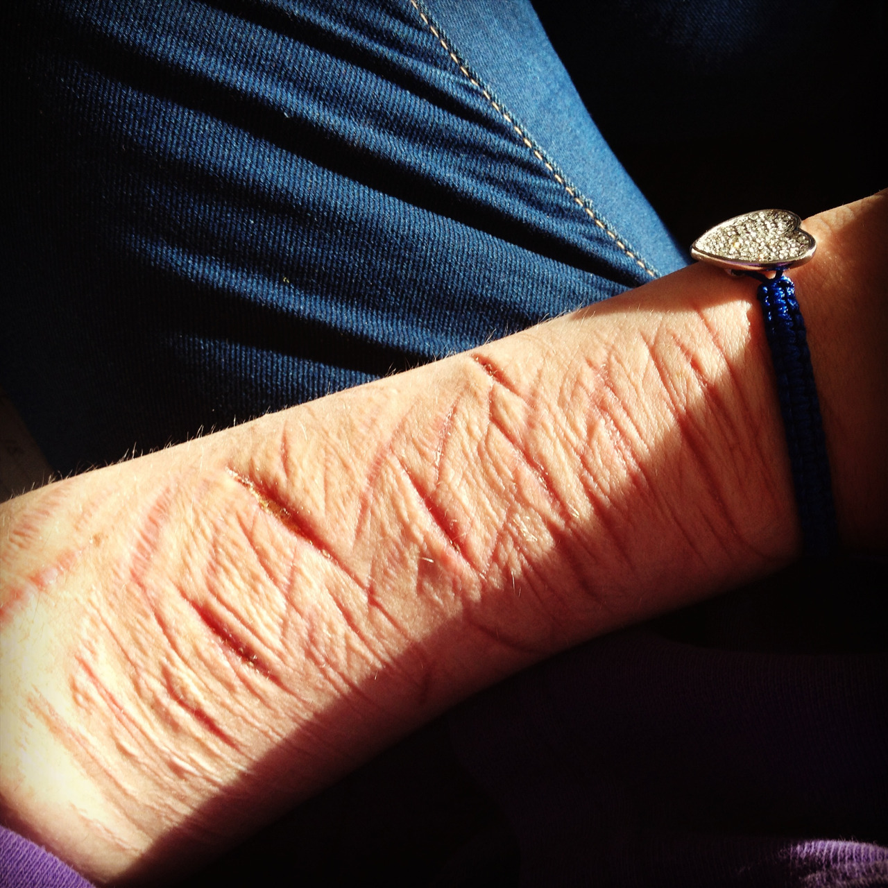 helenakorsgaard:   It's been two weeks since i dragged a blade over my arm for the last time. Kind of proud :)!