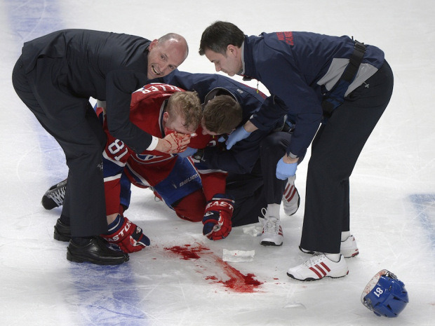 "nationalpostsports:  Canadiens centre Lars Eller left unconscious after hit by Senators' Eric GrybaThe Montreal Canadiens are down a game and a key player early in their series with the Ottawa Senators.Canadiens centre Lars Eller was left unconscious and bleeding on the ice after taking a big hit from Ottawa defenceman Eric Gryba in the second period Senators' 4-2 victory in Game 1 of their Eastern Conference quarter-final on Thursday night.""It's tough seeing a guy laying in a heap with blood coming out,"" said Canadiens centre Ryan White. ""You never want to see that."" (THE CANADIAN PRESS/Graham Hughes)"