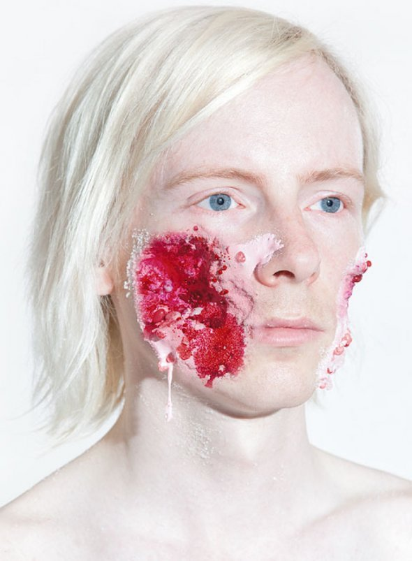 unicorn-meat-is-too-mainstream:   Sweet Injuries  Ashkan Honarvar portrays horrific injuries with whipped cream, ice cream, and other sweets.