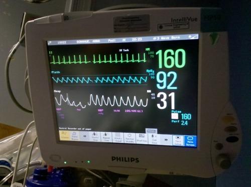 medical heart monitor medcore 19 queue queue ca choo