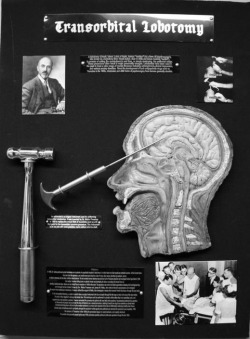 Macabre psychotherapy obscure Lobotomy psychosurgery