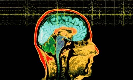 "EEG Identifies Seizures in Hospital Patients Electroencephalogram (EEG), which measures and records electrical activity in the brain, is a quick and efficient way of determining whether seizures are the cause of altered mental status (AMS) and spells, according to a study by scientists at the UC San Francisco. The research, which focused on patients who had been given an EEG after being admitted to the hospital for symptoms such as AMS and spells, appears on March 27 in Mayo Clinic Proceedings. ""We have demonstrated a surprisingly high frequency of seizures – more than 7 percent – in a general inpatient population,"" said senior investigator John Betjemann, MD, a UCSF assistant professor of neurology. ""This tells us that EEG is an underutilized diagnostic tool, and that seizures may be an underappreciated cause of spells and AMS."" The results are important, he said, because EEG can identify treatable causes of AMS or spells, and because ""it can prompt the physician to look for an underlying reason for seizures in persons who did previously have them."" Seizures are treatable with a number of FDA-approved anticonvulsants, he said, ""so patients who are quickly diagnosed can be treated more rapidly and effectively. This may translate to shorter lengths of stay and improved patient outcomes."" In one of the first studies of its kind, Betjemann and his team analyzed the medical records of 1,048 adults who were admitted to a regular inpatient unit of a tertiary care hospital and who underwent an EEG. They found that 7.4 percent of the patients had a seizure of some kind while being monitored. ""As I tell my patients, seizures come in all different flavors, from a dramatic convulsion to a subtle twitching of the face or hand or finger,"" said Betjemann. ""There might be no outward manifestation at all, other than that the person seems a little spacey. It's easily missed by family members and physicians alike, but can be picked up by EEG."" Another 13.4 percent of patients had epileptiform discharges, which are abnormal patterns that indicate patients are at an increased risk of seizures. Almost 65 percent of patients had their first seizure within one hour of EEG recording, and 89 percent within six hours. ""This is good news for smaller hospitals that don't have 24 hour EEG coverage, but that do have a technician on duty during the day,"" Betjemann said. He speculated that lack of 24-hour coverage is a major reason that EEG is not used as an inpatient diagnostic tool as often as it might be. ""This paper shows that, fortunately, it's not necessary. Almost two thirds of patients with seizures can be identified in the first hour, and almost 90 percent in the course of a shift."" EEGs are easy to obtain, painless and noninvasive, said Betjemann. ""The technician applies some paste and electrodes and hooks up the machine. All the patient has to do is rest in bed."" Betjemann said that the next logical research step would be a prospective study. ""We have to start at the beginning, see if patients are altered when they are admitted, and do an EEG in a formal standardized setting. Then we'd want to see how often EEG is changing the management of patients – either starting or stopping medications,"" he said. ""A patient may be having spells, and an EEG might tell you this is not a seizure, and that it's important not to treat it with anti-epileptic medications."" (Image: Rex Features)"